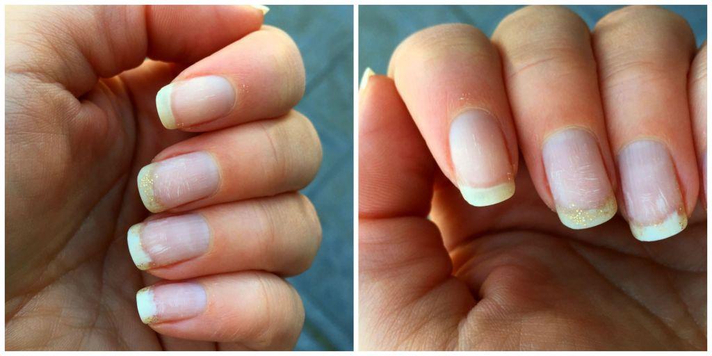 nails after laque lift