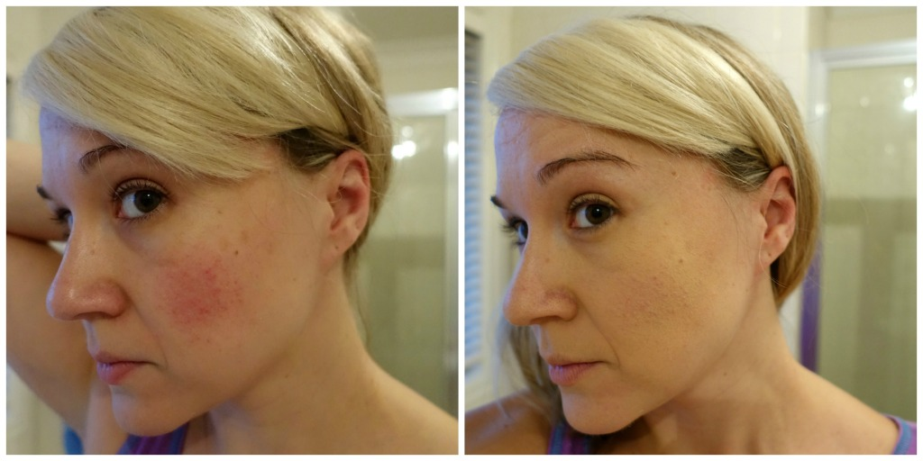 IT cosmetics bye bye redness cream before and after